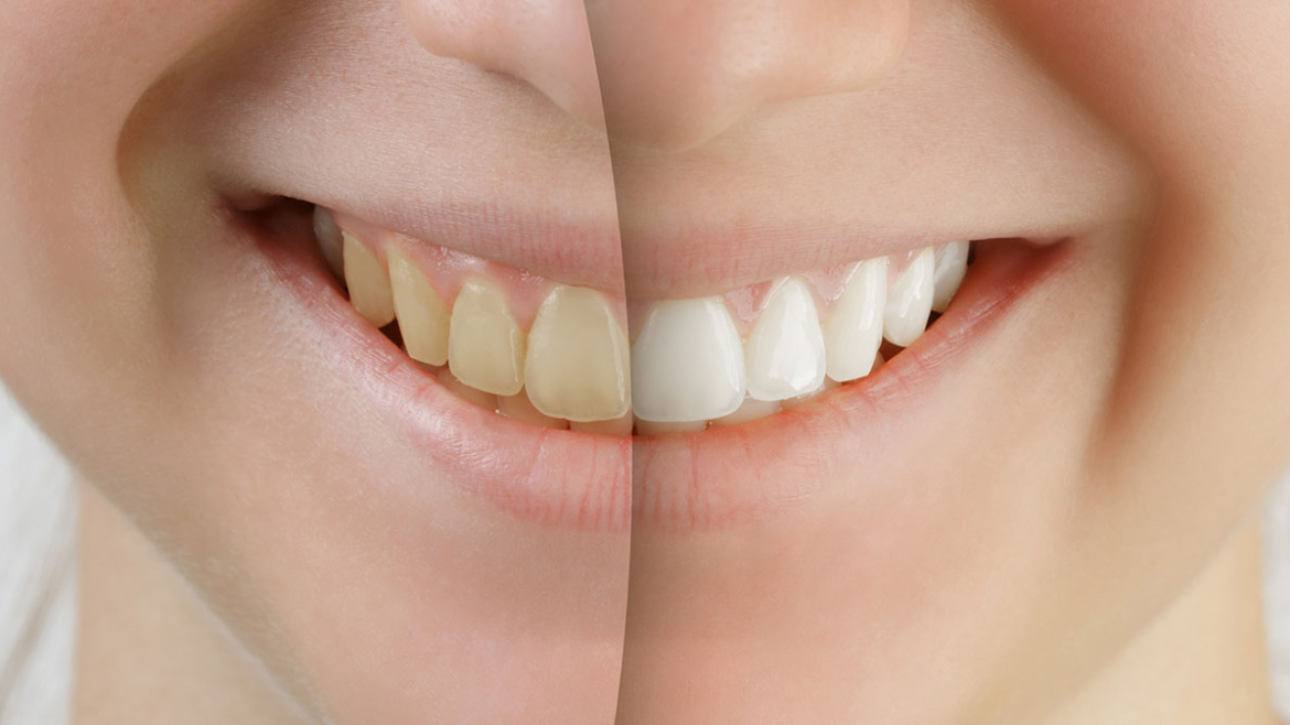 Cosmetic Dentistry in North Battleford