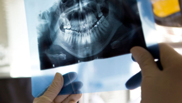Root Canal in North Battleford