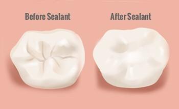 Sealants