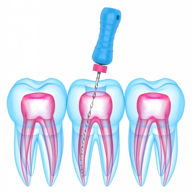 General Dentistry - Root Canal - What Is a Root Canal