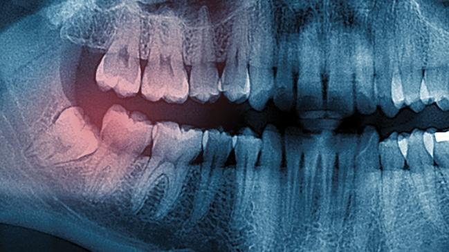 General Dentistry - Wisdom Teeth-Wisdom Teeth Extraction