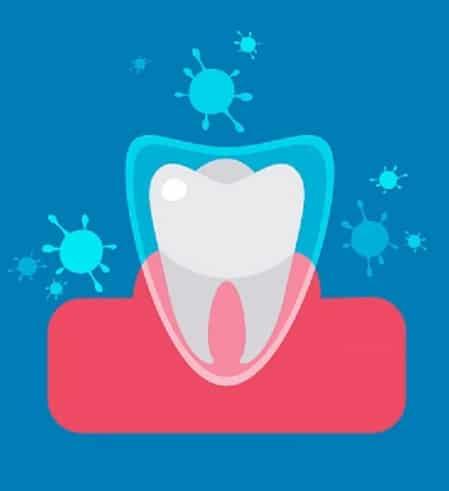 Dental Hygiene- Fluoride Treatments